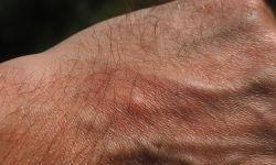 Swędzenie skóry przyczyny – Uporczywy świerzb
