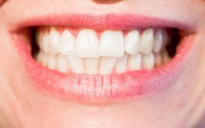 Gdzie we Wrocławiu implanty stomatologiczne?